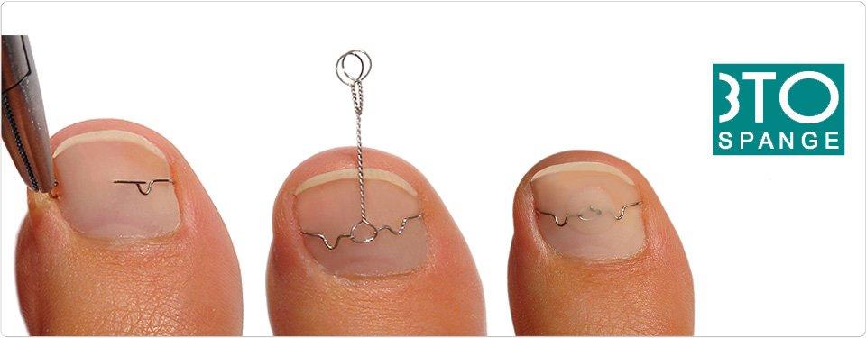 Скобы при вросшем ногте фото
